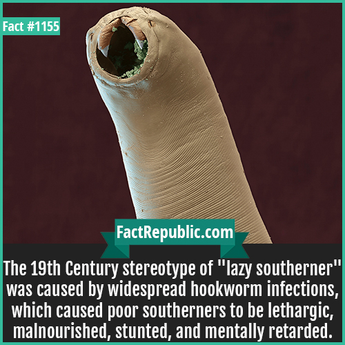 1155. Hookworm Lazy Southerners-The 19th Century stereotype of