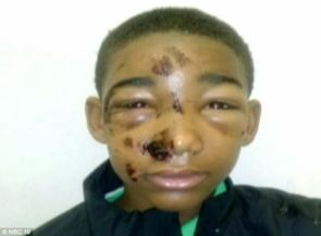 Armed and trained cops felt threatened by a kid so they tasered the kids's face.