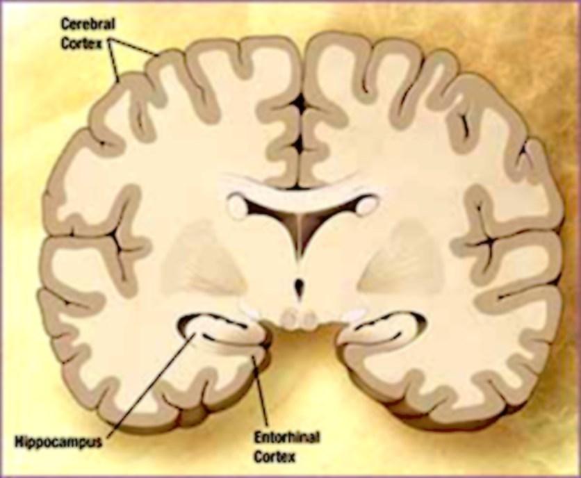 entorhinal-cortex