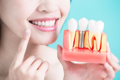 healthy-dental-concept-picture-id690834152