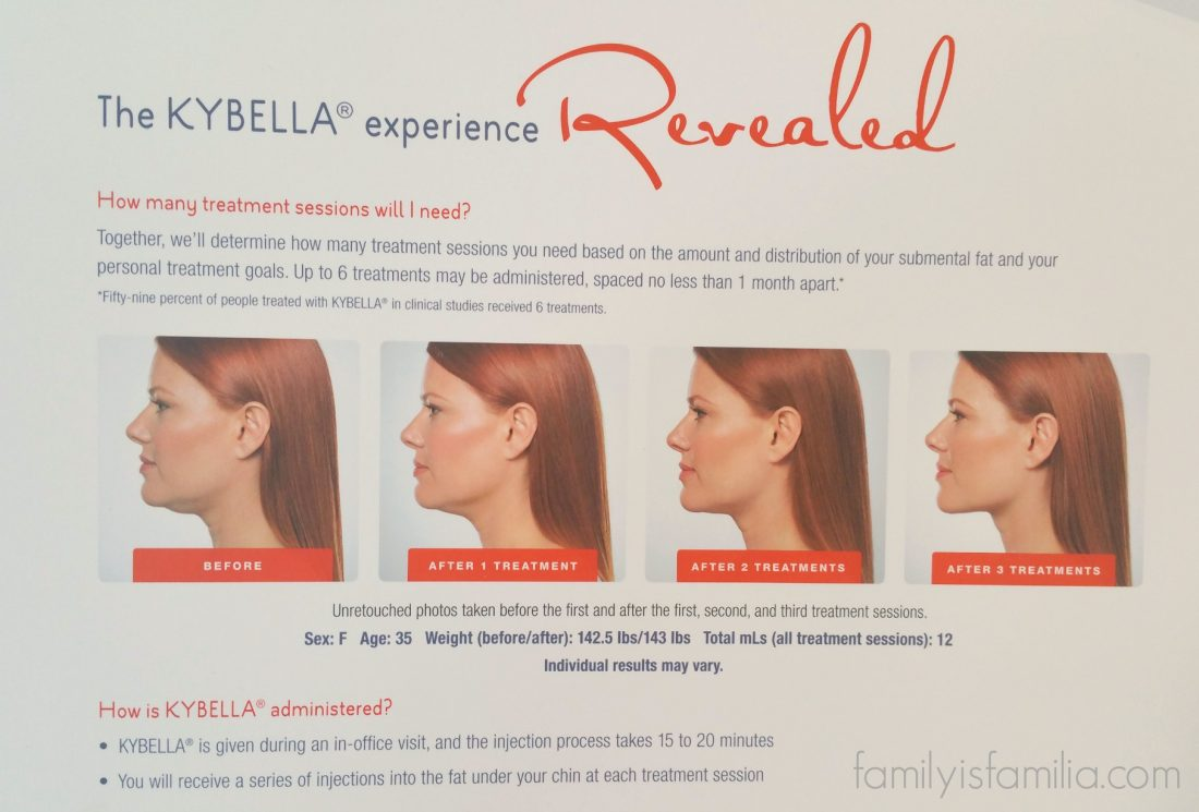 Exploring Kybella and Why You May Want to Get It!