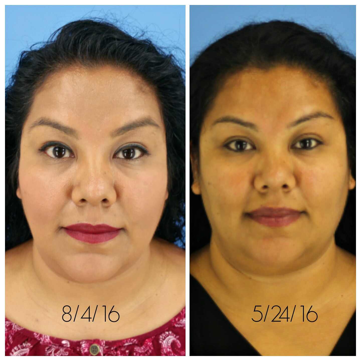 2nd-kybella-treatment-update-with-pictures-cosmeticaremoms