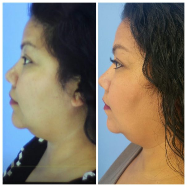 Let's Talk About Kybella! (Before and After Pics Included)