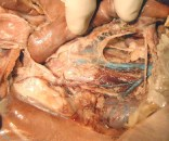 01_testicular_vein_P5204337