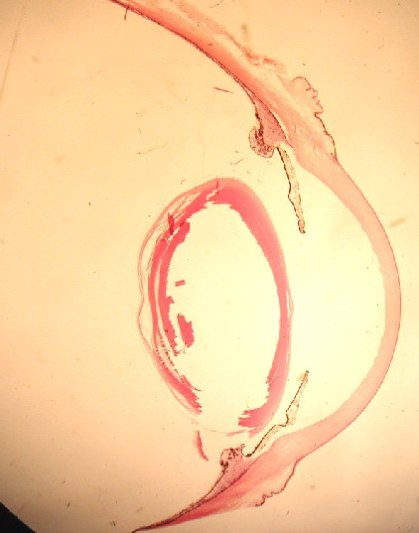 eyeball_anterior_half_PC271489md