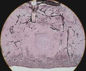 lymph node: germinal center 100x