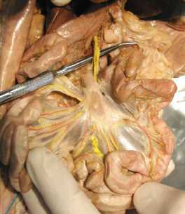 lymphatic drainage, adjacent to portal drainage (yellow) of the small intestine leads to a set of lymph nodes.