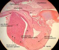 Hypophysis