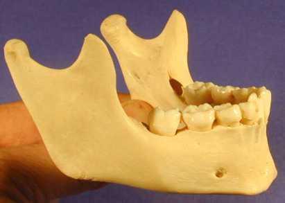 mandible_lateral_PA281031