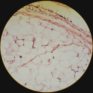 loose connective tissue (adipose tissue)