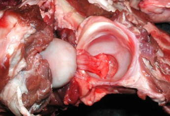 With the entire capusle cut, the head of the femur can be pulled aside showing the ligamentum teres connecting to the acetabulum and the acetabular labrum around the edge of the acetabulum.