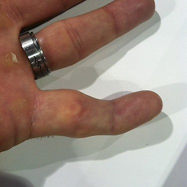 Rousey breaks Stanns finger... or did she?