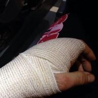 Cole Millers broken left hand from UFN 35