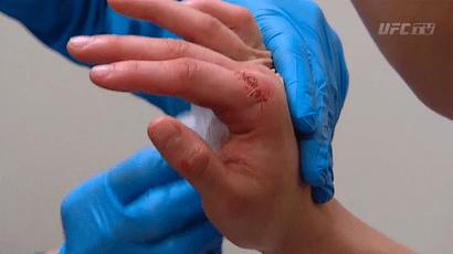 Ronda Rousey Hand stitches