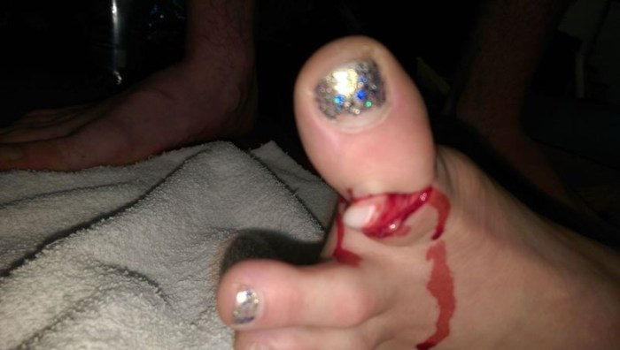 emily corso dislocated toe