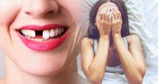 Dreams of Losing Your Teeth