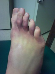 broken foot timeline