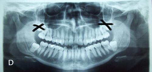 ortopantomograf?a3