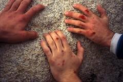 Climber Hands