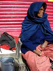 Leprosy - McLeod Ganj, India