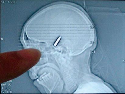 Bullet x-ray