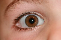 Right Eye of Five Year Old