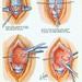 larynx12
