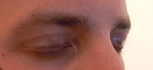 Eye Blink