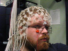 autism neuroimaging study