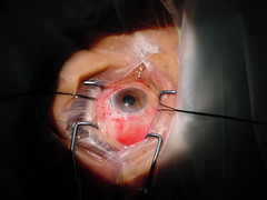 Cataract surgery in the desert