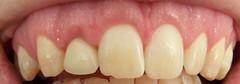 Teeth: after