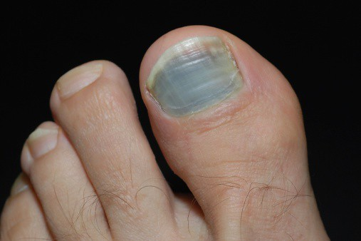 Bruised toenail about to fall off
