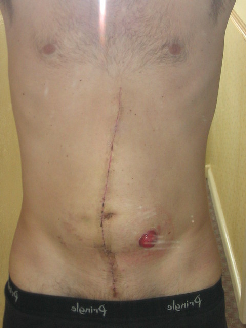 Post Op Scar Amp Stoma In May 2004 I Underwent Major Surgery Flickr Photo Sharing