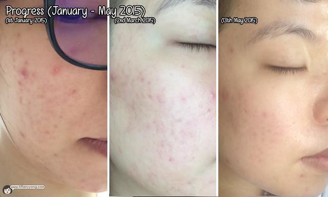 Clifford Clinic Right Face Progress Jan-May 2015