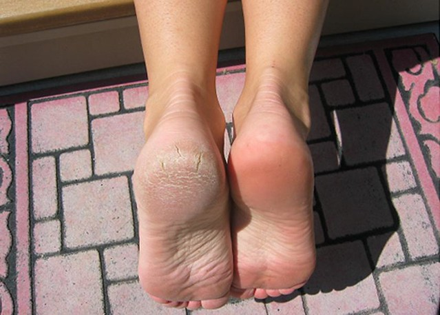 Arbonne Before and After - Dry Feet | Used RE9 serum and ...