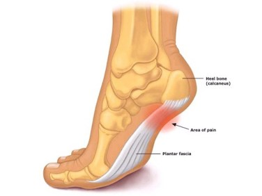 feet hurt in morning