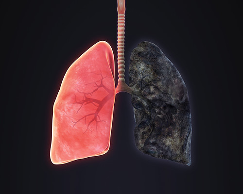 O que ex-fumantes podem fazer para reduzir o risco de enfisema?