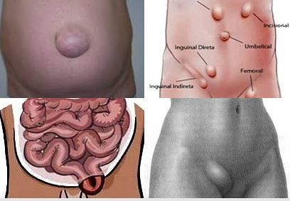 Bahaya Penyakit Hernia