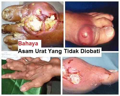 jari bengkak karena asam urat