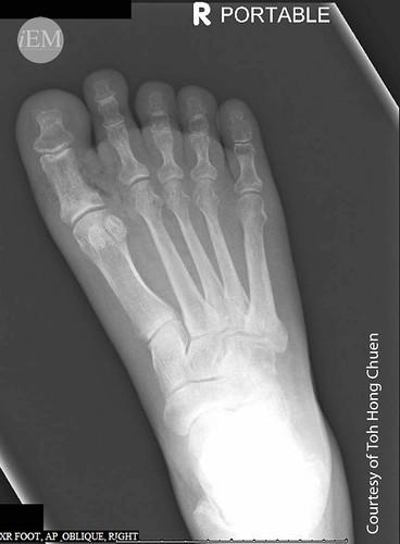 61 - Diabetic Foot - Subcutaneous air