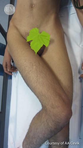605 - Hip dislocation