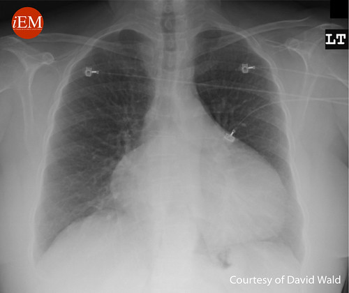 606 - Figure1 - Chest X-ray of a pericardial effusion