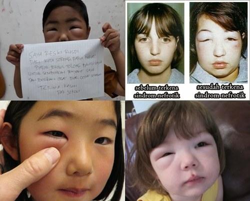 Obat Sindrom Nefrotik Pada Anak Dan Dewasa
