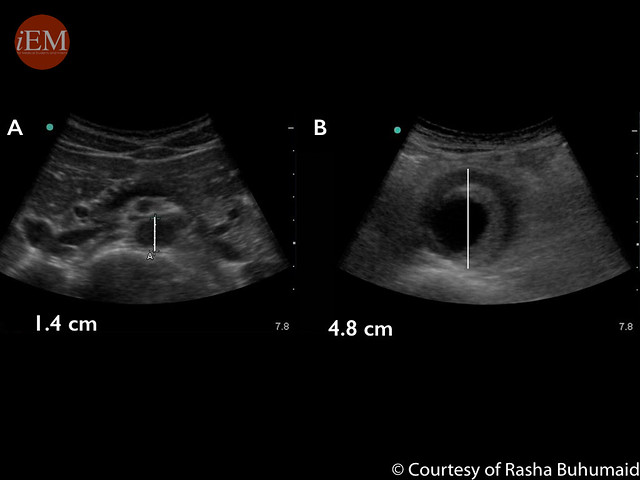 Figure 7 - Normal and abnormal abdominal aorta