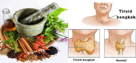 Obat Tradisional Tiroid Rumahan