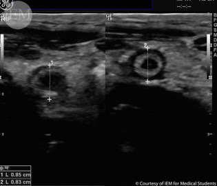 Kidney ureter and bladder x ray study