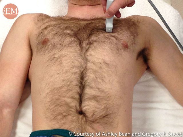 Transducer Position to Evaluate for Pneumothorax