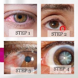 Cara Menghilangkan Bintik Putih Di Kornea Mata