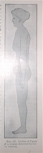 Figure of a woman deformed by corset-wearing