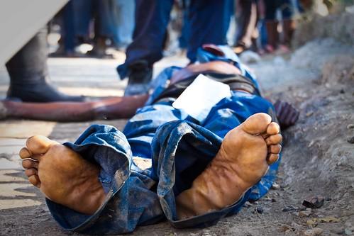 Cholera-Victim-Feet